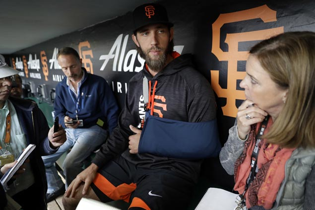 Madison Bumgarner not putting timetable on return from shoulder injury