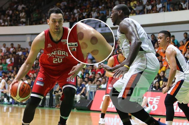 Wondering what those black spots on Greg Slaughter's shoulders are? Greg explains
