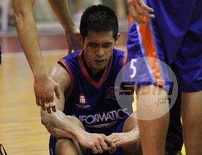 Kirk Del Rosario of Informatics suffers a cut during the course of the game. Photo by Jerome Ascano