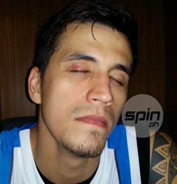 Marc Pingris shows the nasty cut on his eyelashes. Photo by Snow Badua