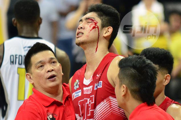 Will Bartolome shrugs off bloody cut, says hit from UST import Afoakwah 'unintentional'