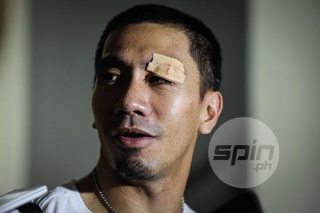 Boxer's cut fails to dampen LA Tenorio mood as Ginebra gets off the block