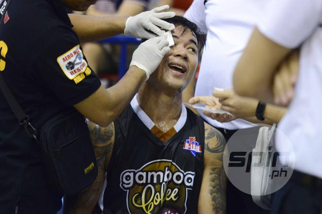 Double whammy for Leo Avenido as Gamboa playing coach suffers cut above eye in loss to AMA