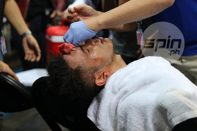Matt Nieto suffers bloody cut from inadvertent Mbala elbow in physical first half of finals opener