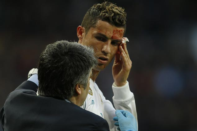 Cristiano Ronaldo nets brace but suffers nasty cut to his face in Madrid rout of Deportivo