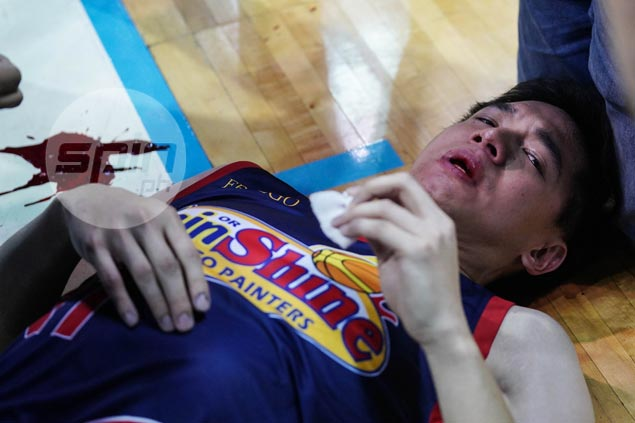 Revenge so sweet for Chris Tiu after losing consciousness from 'intentional' White elbow