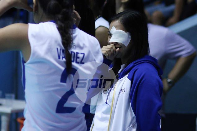 Ella de Jesus eye infection adds to Ateneo health woes but Lady Eagles remain unbeaten