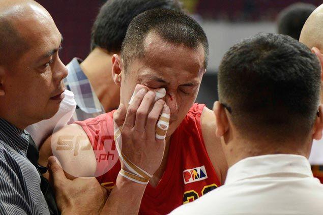 Chico Lanete gruesome eye injury the only dampener to shock Barako win over Ginebra
