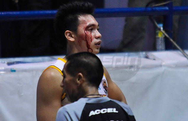 Twice the pain for Earl Thompson as he suffers boxer's cut in Altas loss to Cardinals