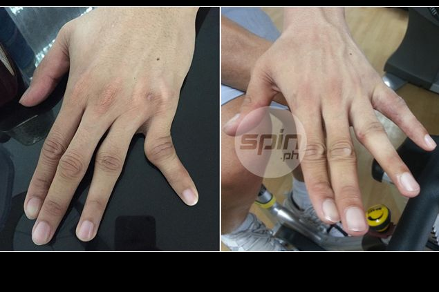 Japeth Aguilar dunks, joins Ginebra drills even with finger still swollen post surgery
