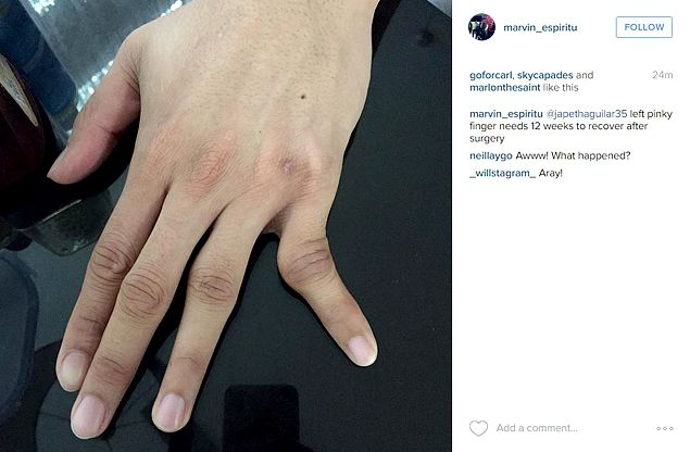 Japeth Aguilar ruled out of Gilas team after undergoing surgery on dislocated finger