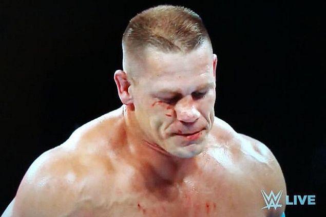 John Cena undergoes surgery on broken nose suffered in Seth Rollins match