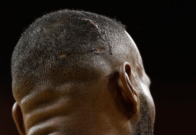Bloodied and beaten, Cavs star LeBron James looks like he could use a little rest