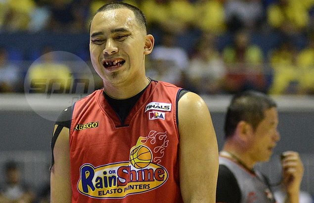 Paul Lee ready to play in Game Four after two front teeth 'saved' in dental procedure