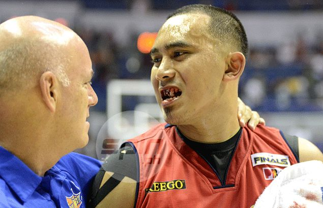 Johnson elbow knocks off Paul Lee tooth but fails to take bite off RoS guard's game