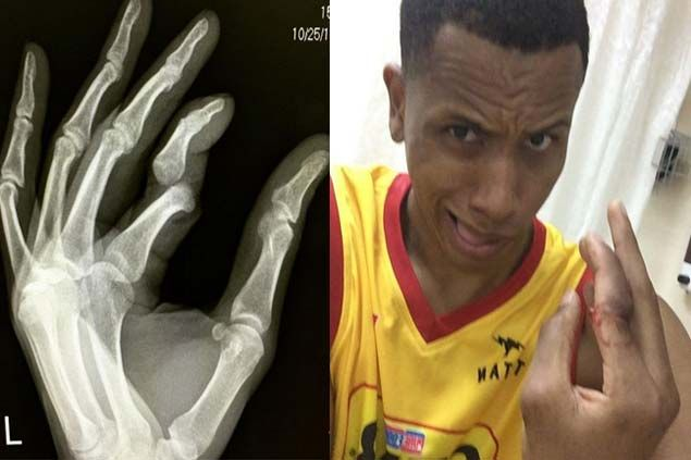 Star center Rafi Reavis out for remainder of PH Cup elims due to dislocated finger